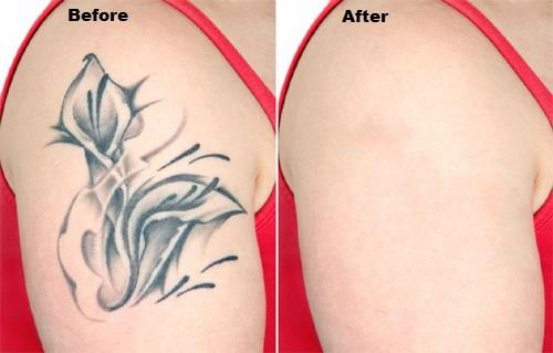 Tatoo Removal 2